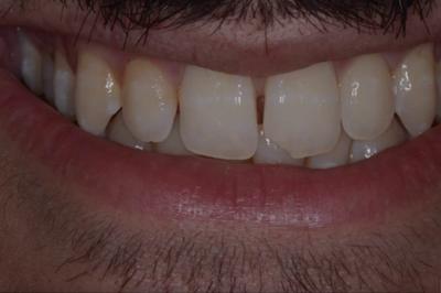 caso estetico 2 frattura dente