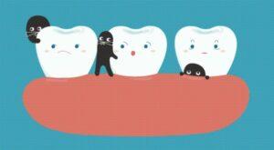 carie tra i denti